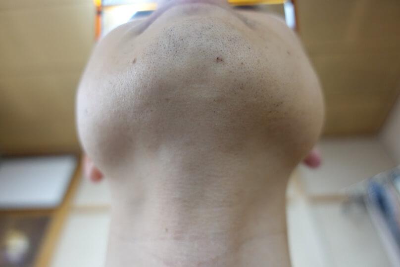 メンズリゼでヒゲ脱毛12回目施術3日後-あご下