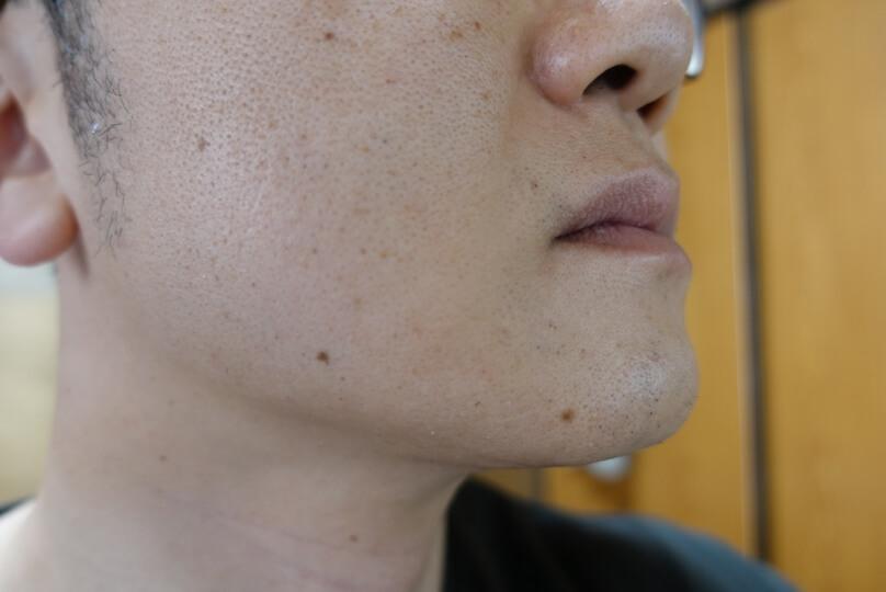 メンズリゼでヒゲ脱毛12回目施術3日後-側面(右)