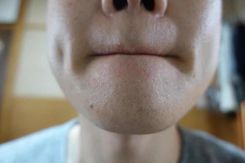 メンズリゼでヒゲ脱毛12回目施術1ヵ月後-正面