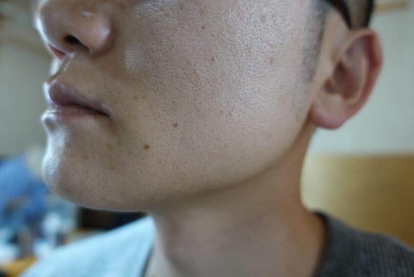 メンズリゼでヒゲ脱毛12回目施術1ヵ月後-側面(左)