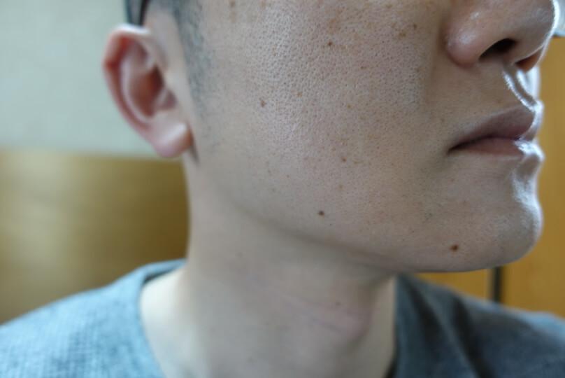 メンズリゼでヒゲ脱毛12回目施術1ヵ月後-側面(右)