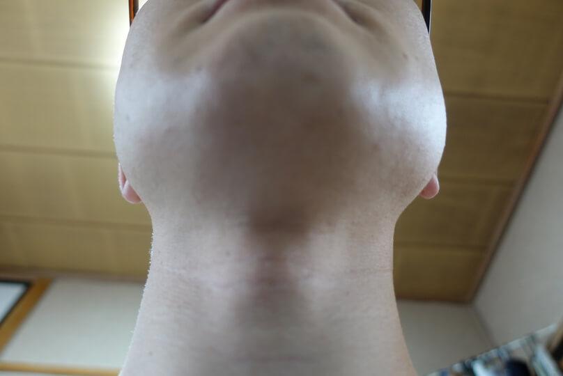 メンズリゼでヒゲ脱毛12回目施術1ヵ月後-あご下