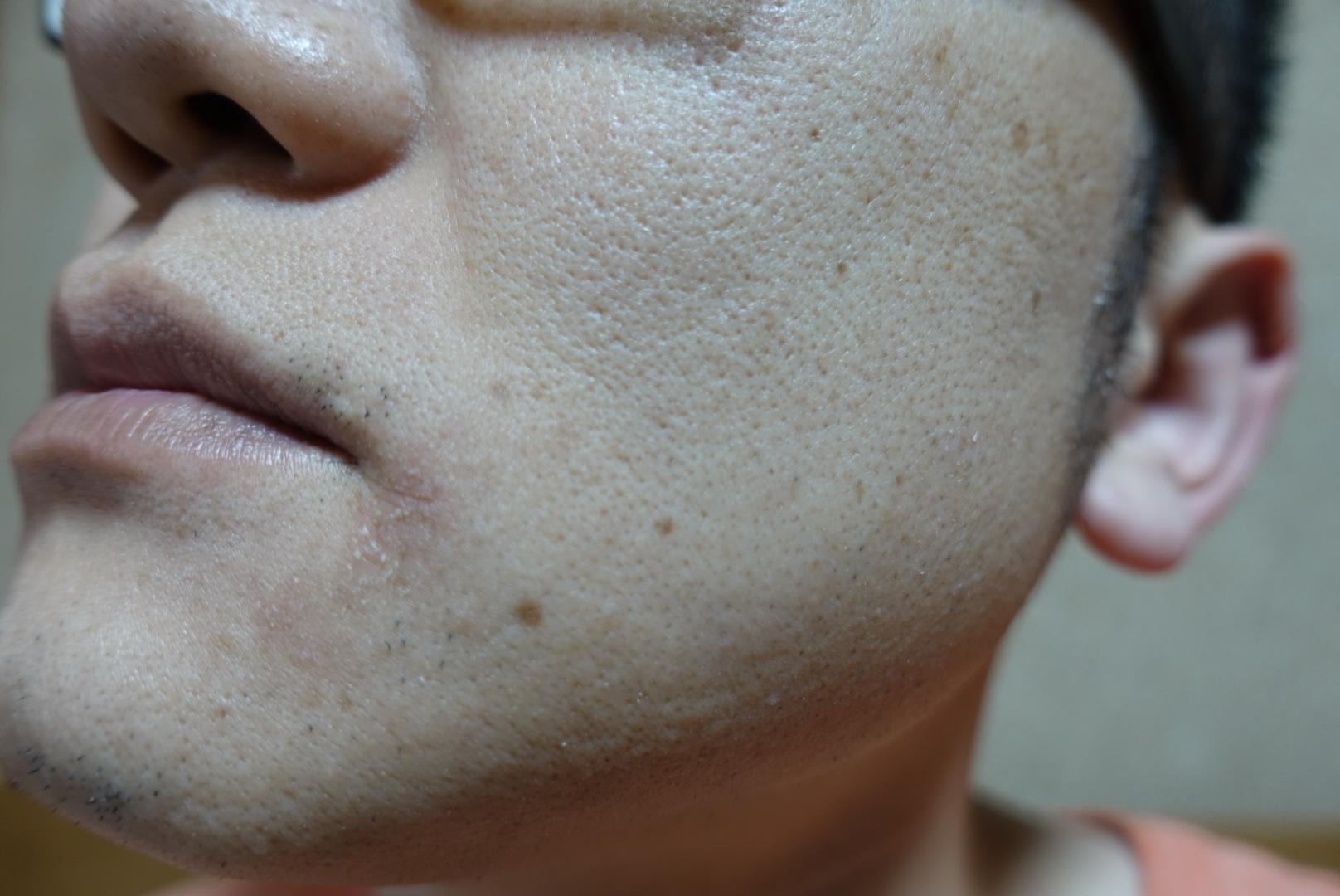 メンズリゼでヒゲ脱毛13回目施術前-側面(左)