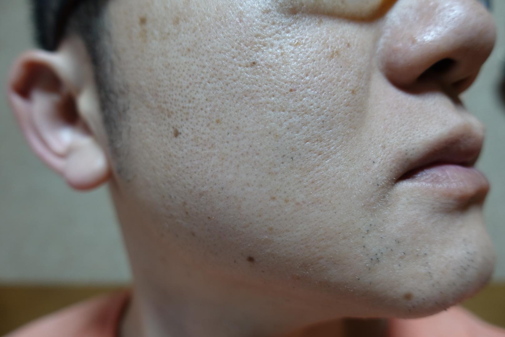 メンズリゼでヒゲ脱毛13回目施術前-側面(右)