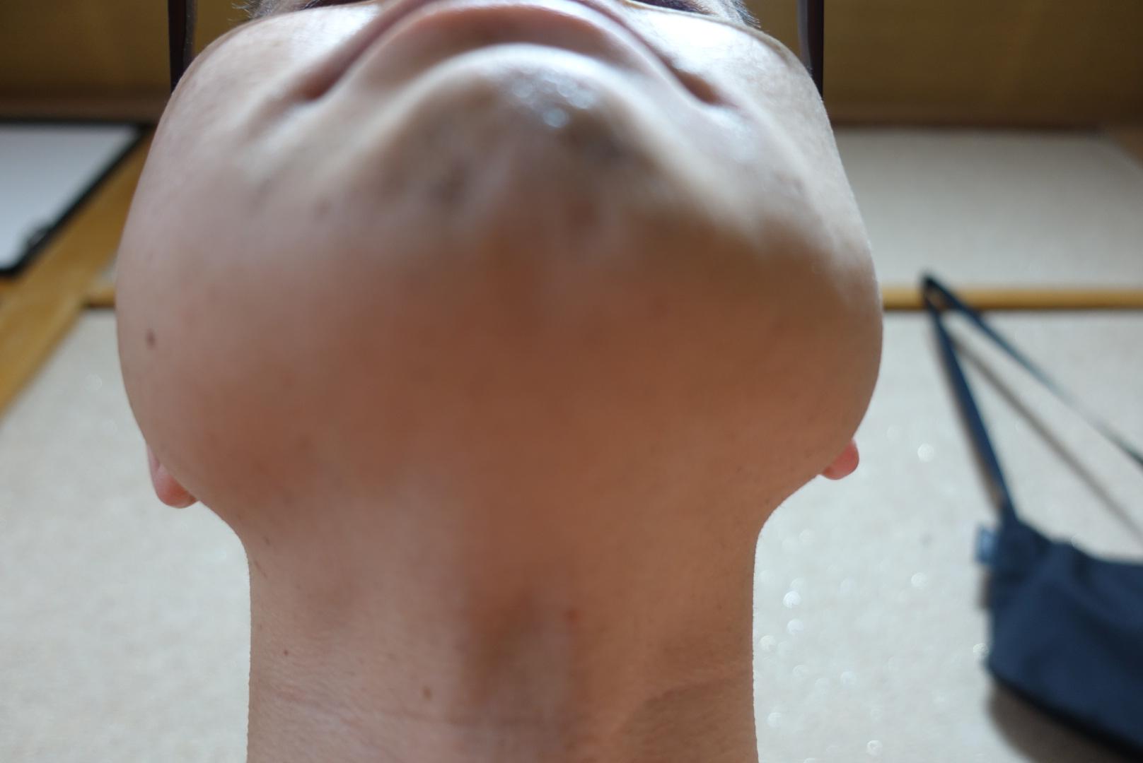 メンズリゼでヒゲ脱毛13回目施術前-あご下
