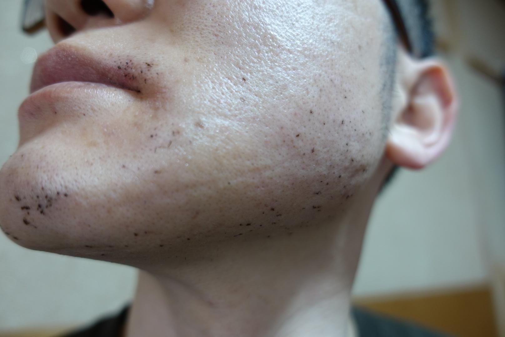 メンズリゼでヒゲ脱毛13回目施術直後-側面(左)