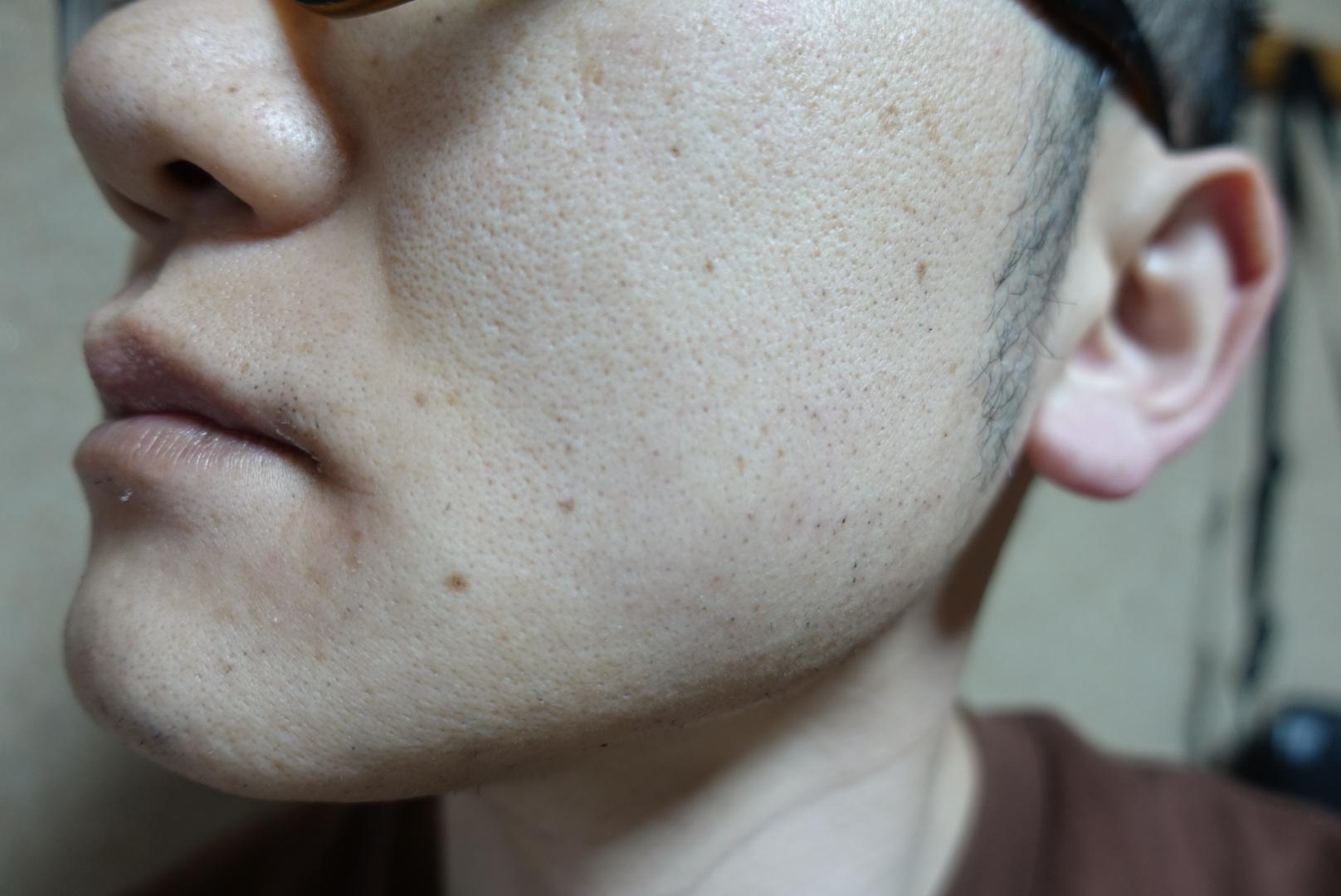 メンズリゼでヒゲ脱毛13回目施術3日後-側面(左)