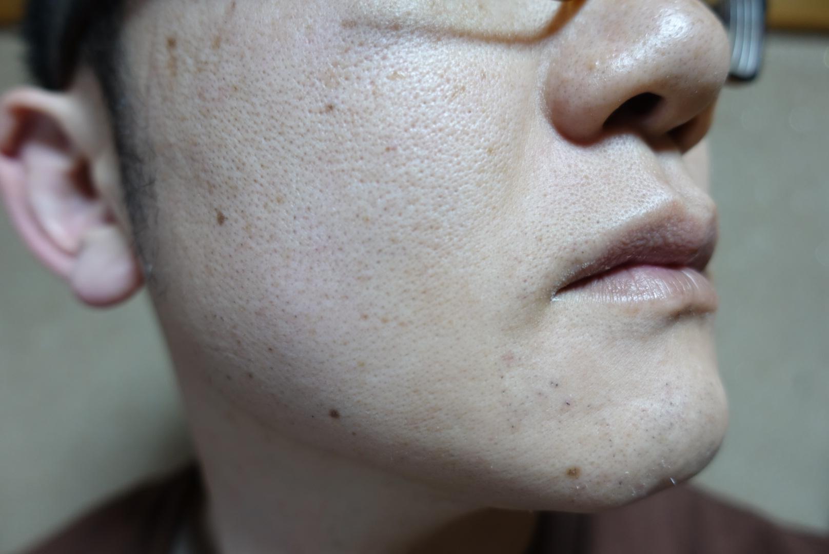 メンズリゼでヒゲ脱毛13回目施術3日後-側面(右)