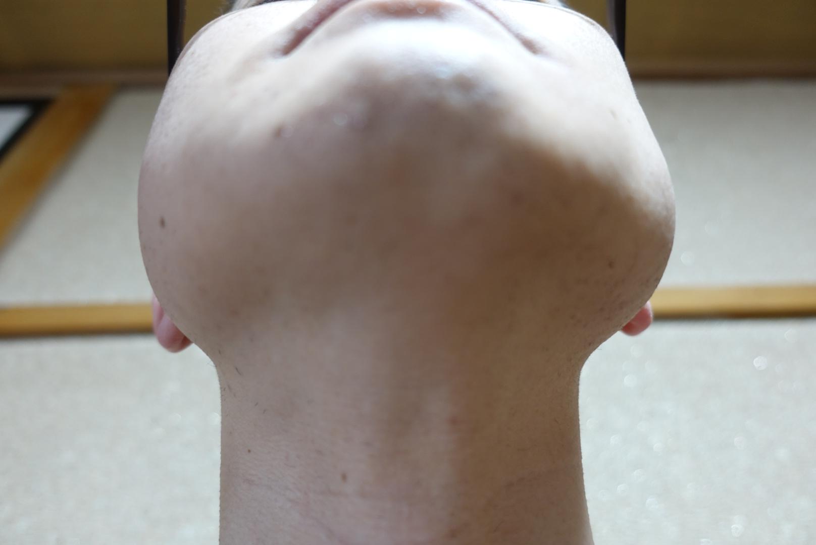 メンズリゼでヒゲ脱毛13回目施術3日後-あご下