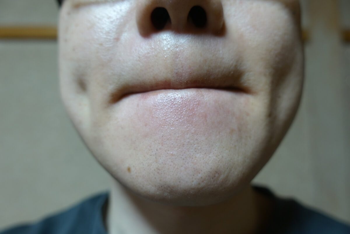 メンズリゼでヒゲ脱毛13回目施術1ヵ月後-正面