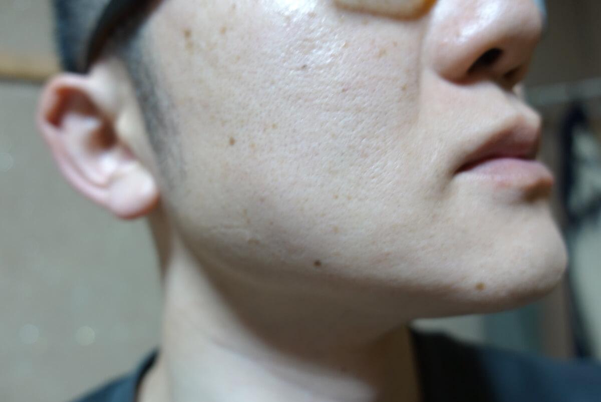 メンズリゼでヒゲ脱毛13回目施術1ヵ月後-側面(右)