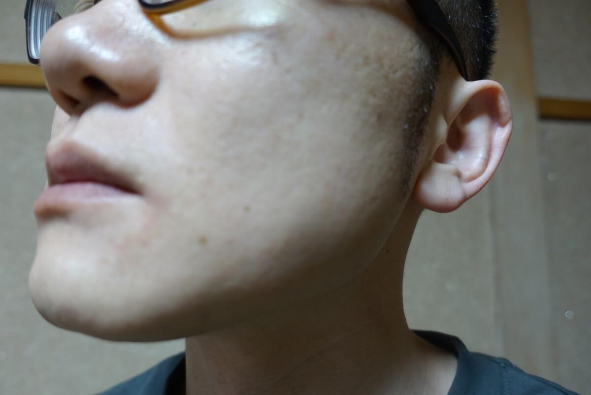 メンズリゼでヒゲ脱毛13回目施術1ヵ月後-側面(左)
