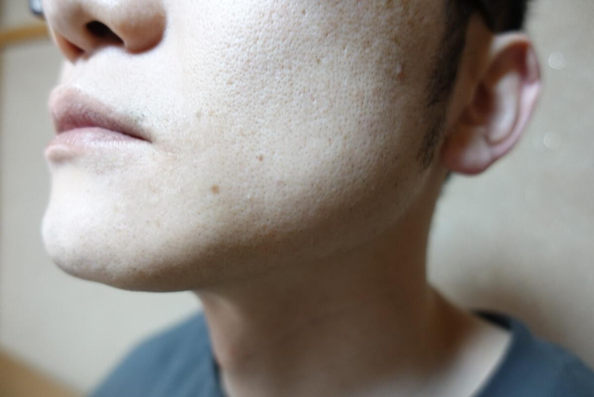 メンズリゼでヒゲ脱毛14回目施術前-側面(左)