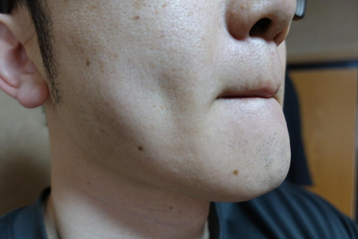 メンズリゼでヒゲ脱毛14回目施術前-側面(右)