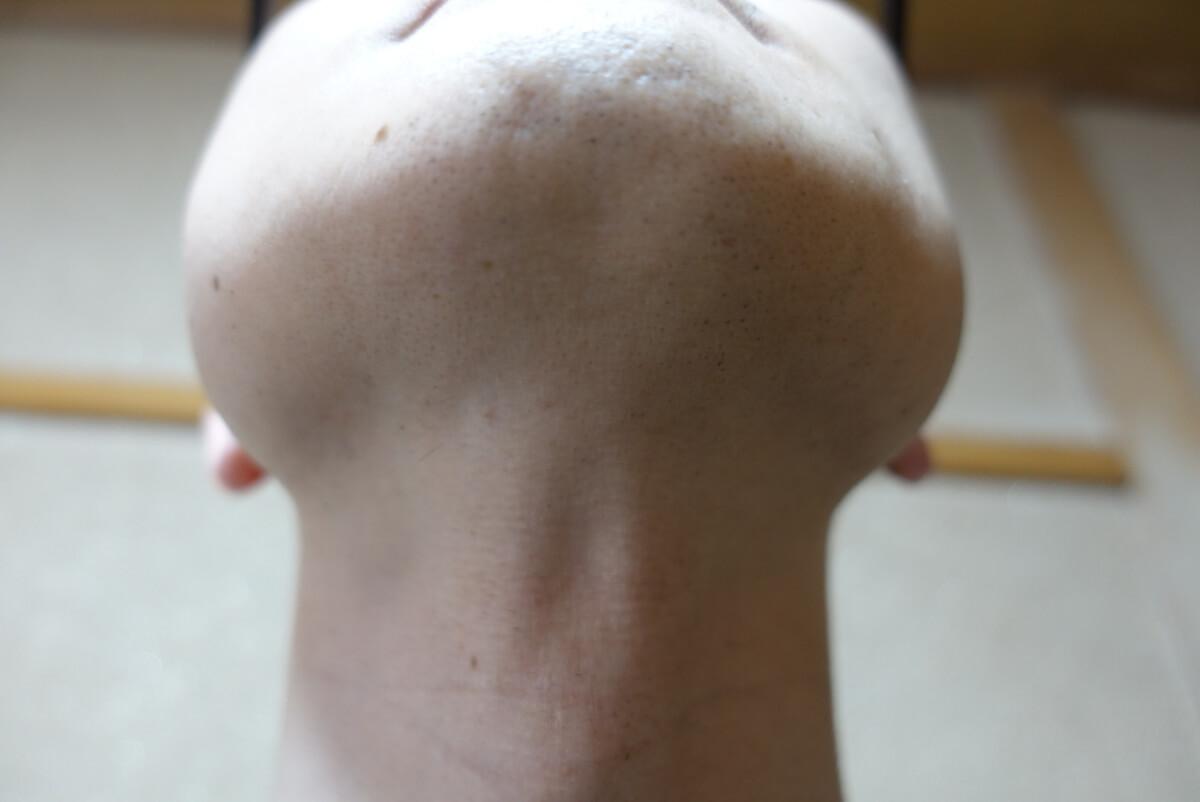 メンズリゼでヒゲ脱毛14回目施術前-あご下