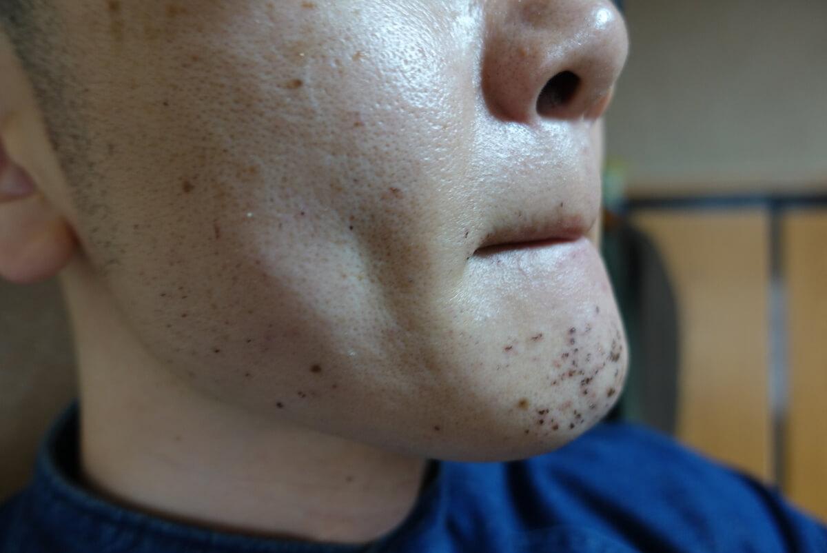 メンズリゼでヒゲ脱毛14回目施術直後-側面(右)
