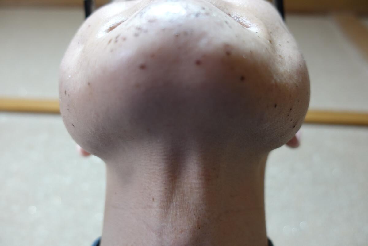 メンズリゼでヒゲ脱毛14回目施術直後-あご下