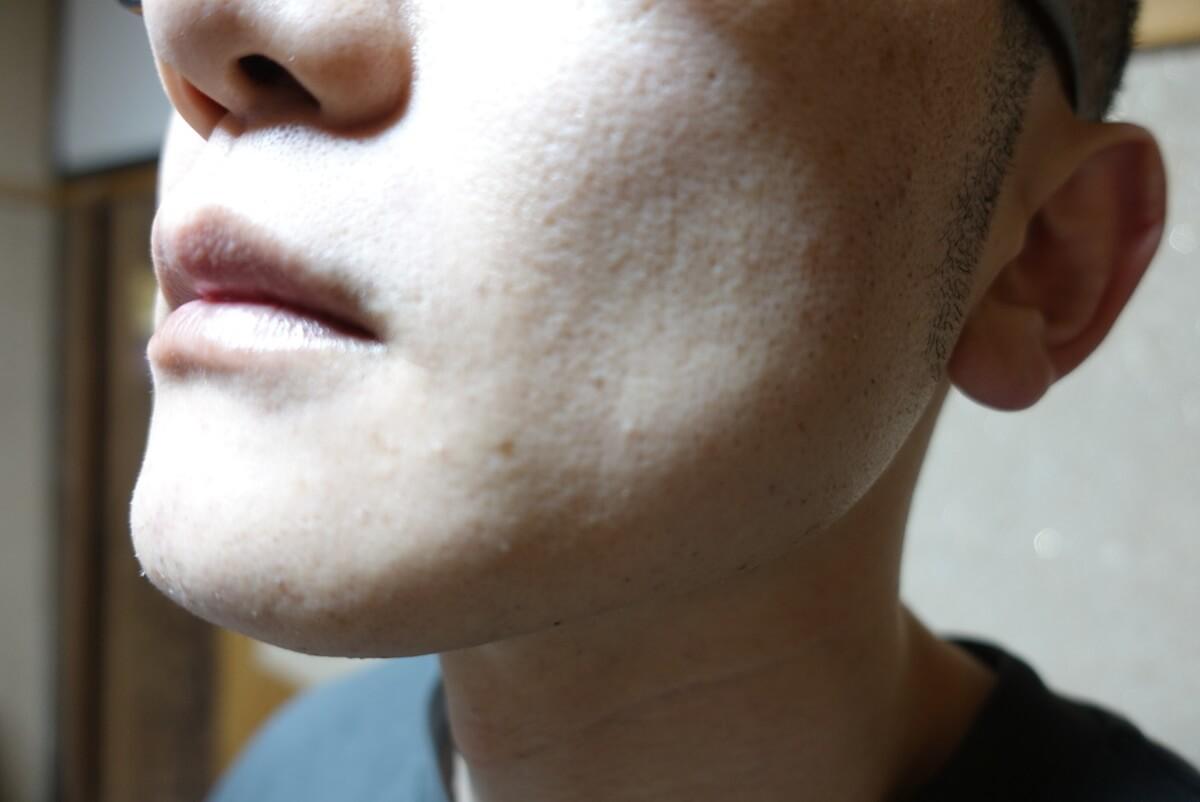メンズリゼでヒゲ脱毛14回目施術3日後-側面(左)