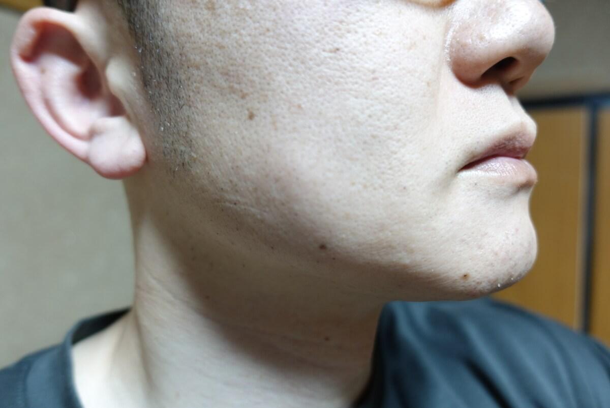 メンズリゼでヒゲ脱毛14回目施術3日後-側面(右)
