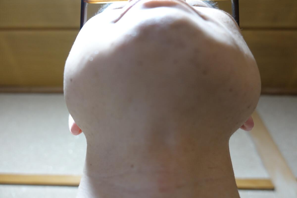 メンズリゼでヒゲ脱毛14回目施術3日後-あご下