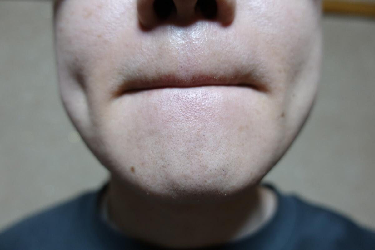 メンズリゼでヒゲ脱毛14回目施術1ヵ月後-正面