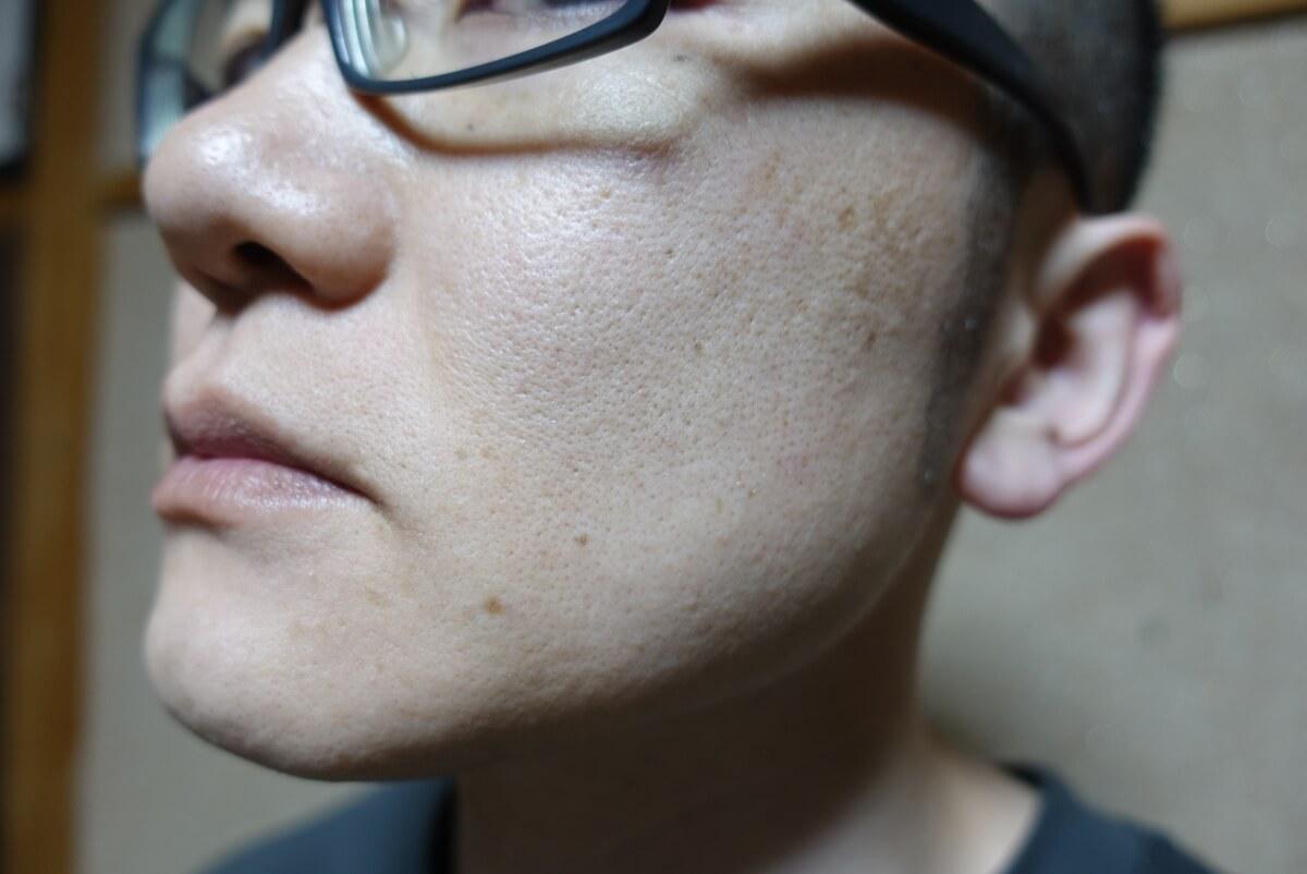メンズリゼでヒゲ脱毛14回目施術1ヵ月後-側面(左)