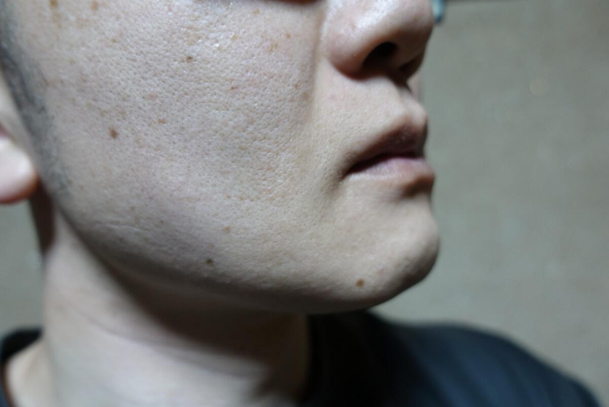 メンズリゼでヒゲ脱毛14回目施術1ヵ月後-側面(右)