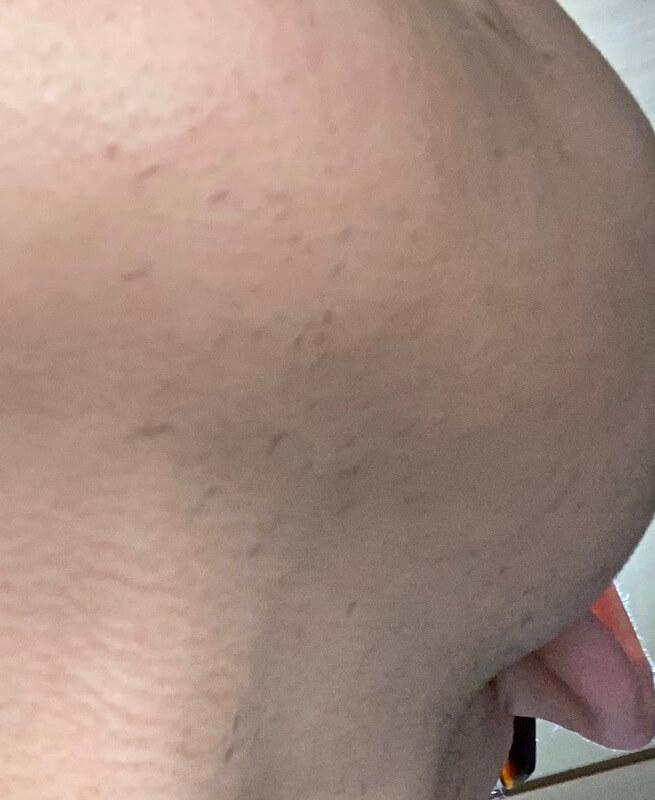 メンズリゼでヒゲ脱毛14回目施術1週間ヒゲを放置-あご下拡大