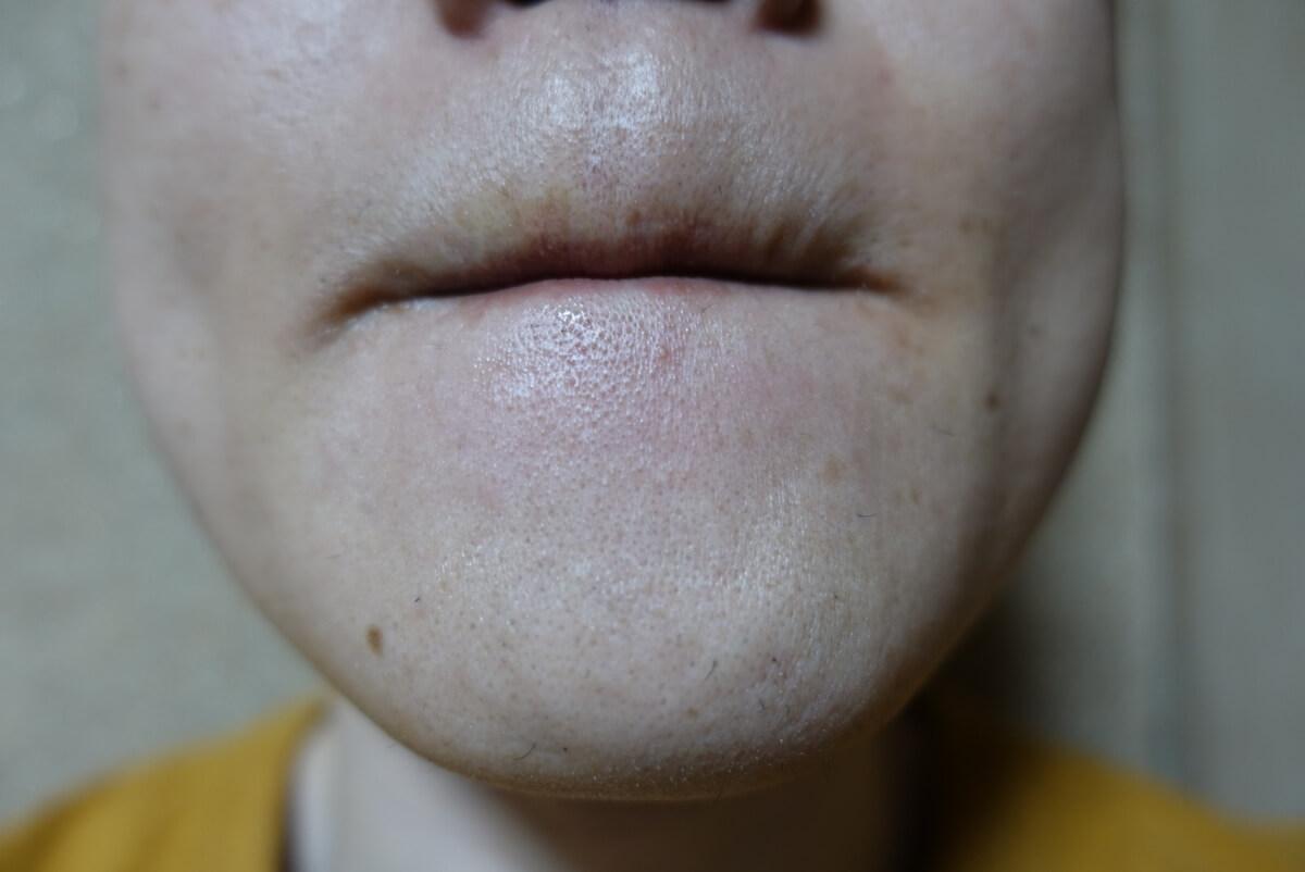 メンズリゼでヒゲ脱毛14回目施術1週間ヒゲを放置-正面