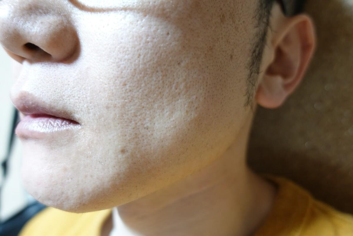 メンズリゼでヒゲ脱毛14回目施術1週間ヒゲを放置-側面(左)