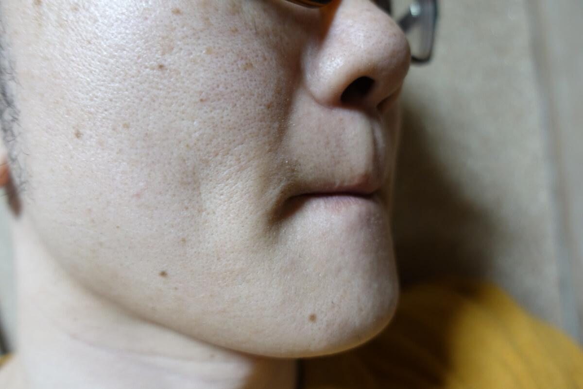 メンズリゼでヒゲ脱毛14回目施術1週間ヒゲを放置-側面(右)