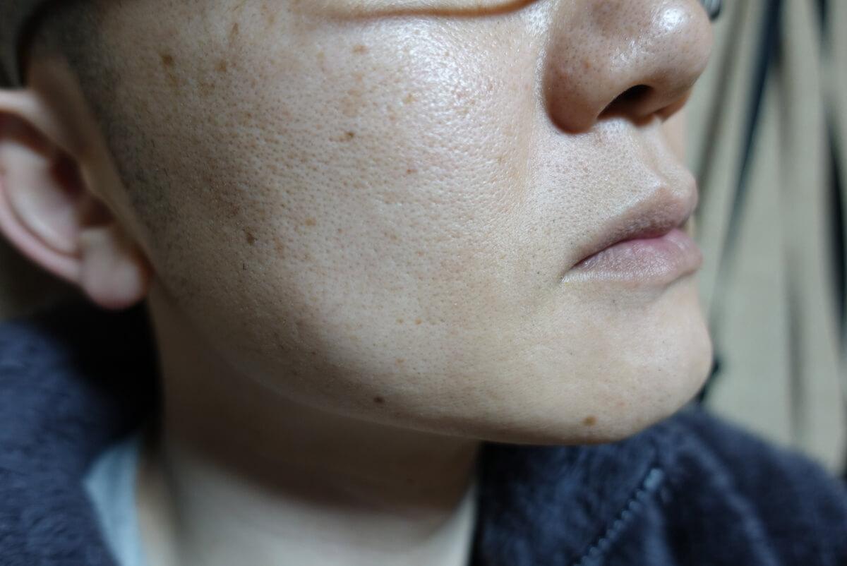 メンズリゼでヒゲ脱毛15回目施術前-側面(右)