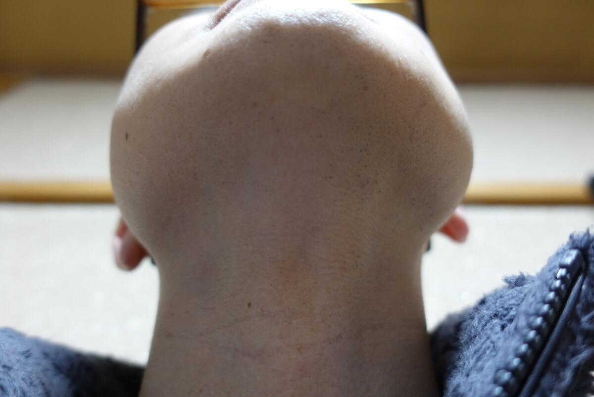 メンズリゼでヒゲ脱毛15回目施術前-あご下