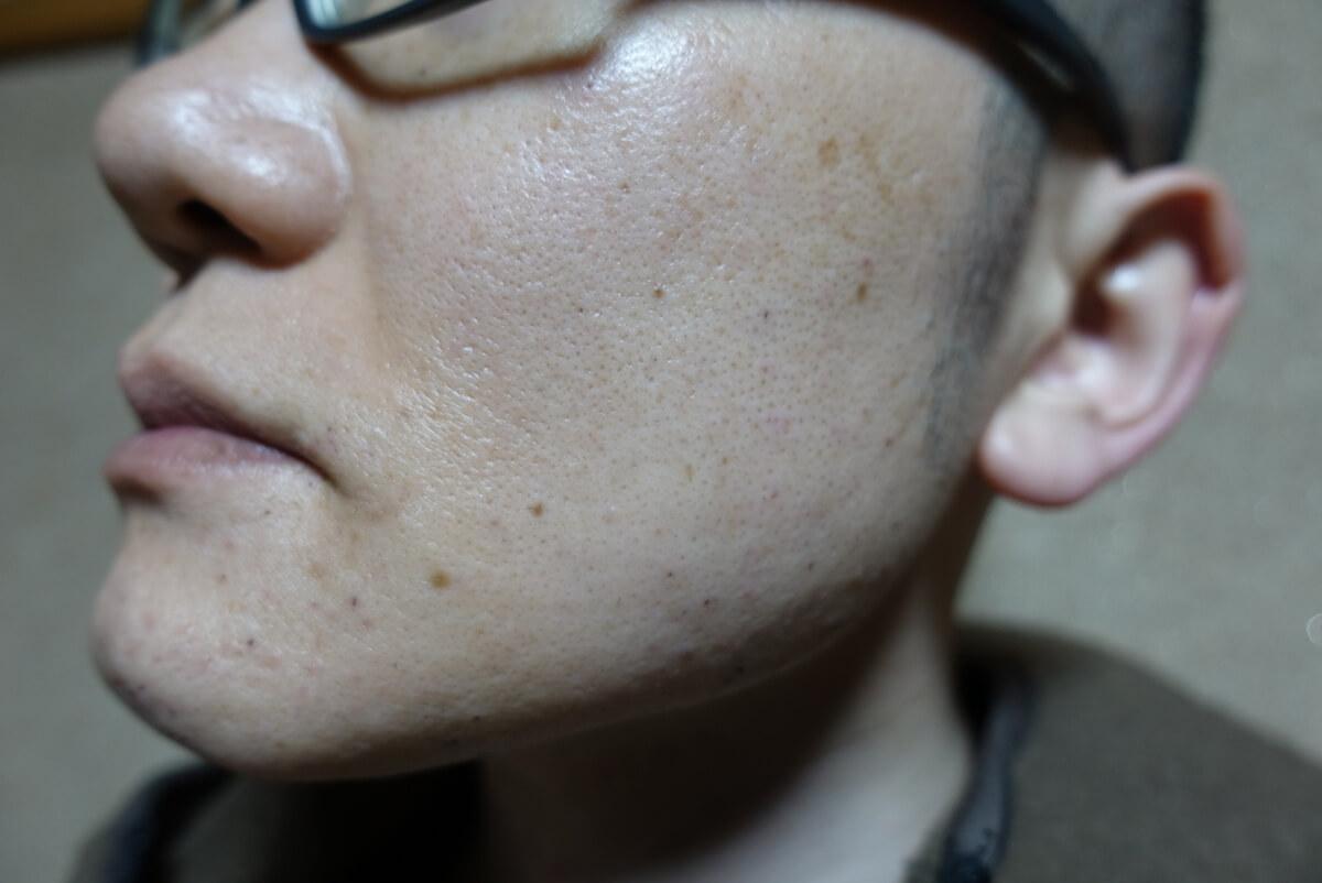 メンズリゼでヒゲ脱毛15回目施術直後-側面(左)