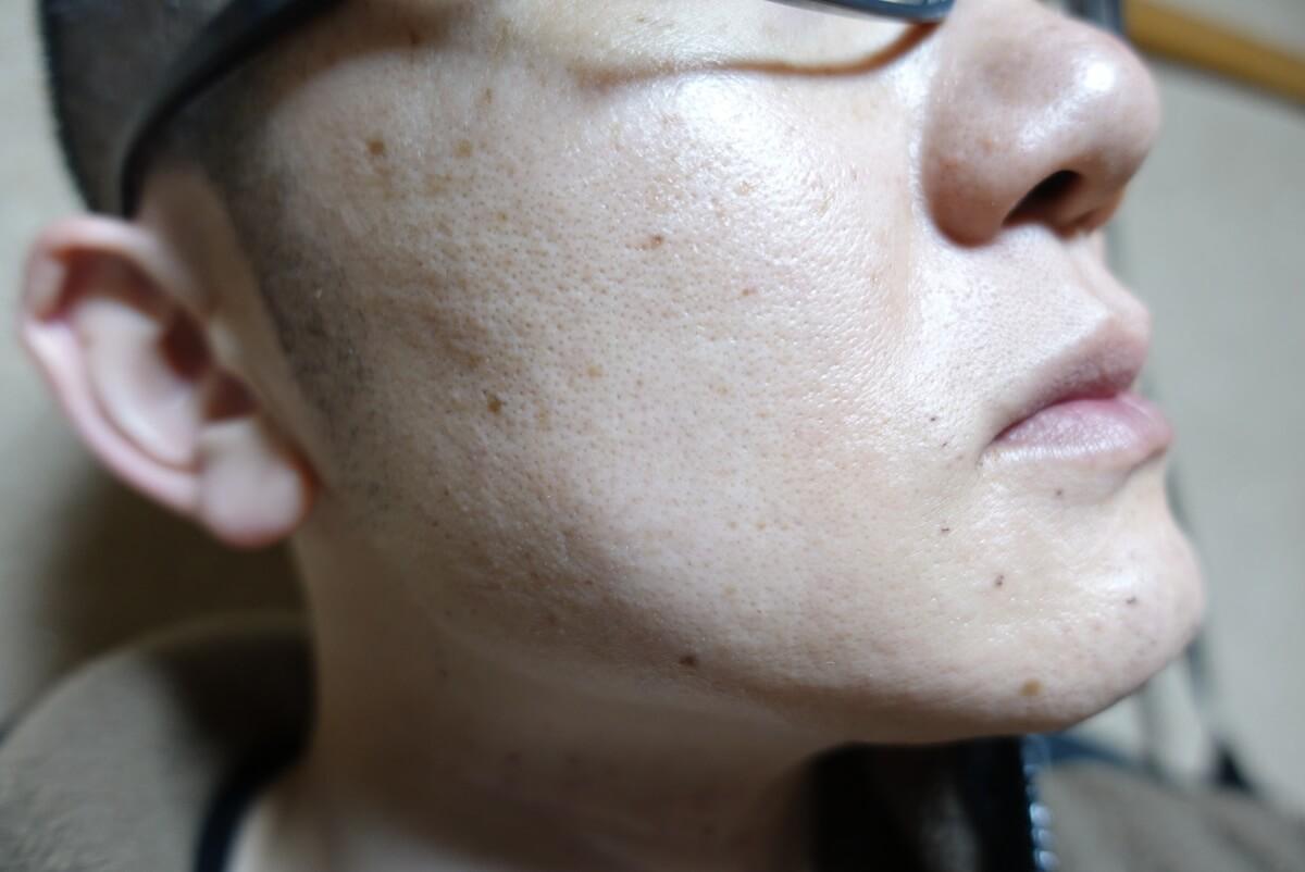 メンズリゼでヒゲ脱毛15回目施術直後-側面(右)