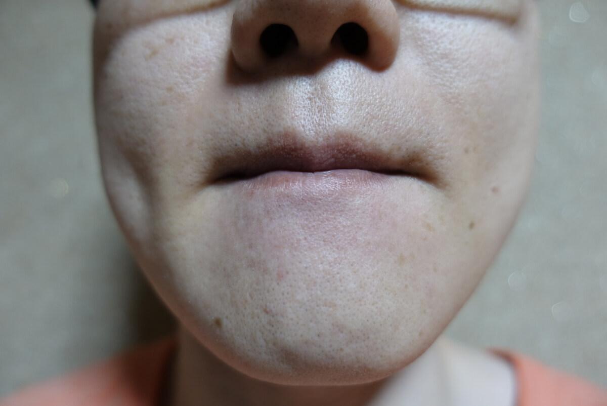 メンズリゼでヒゲ脱毛15回目施術1ヵ月後-正面