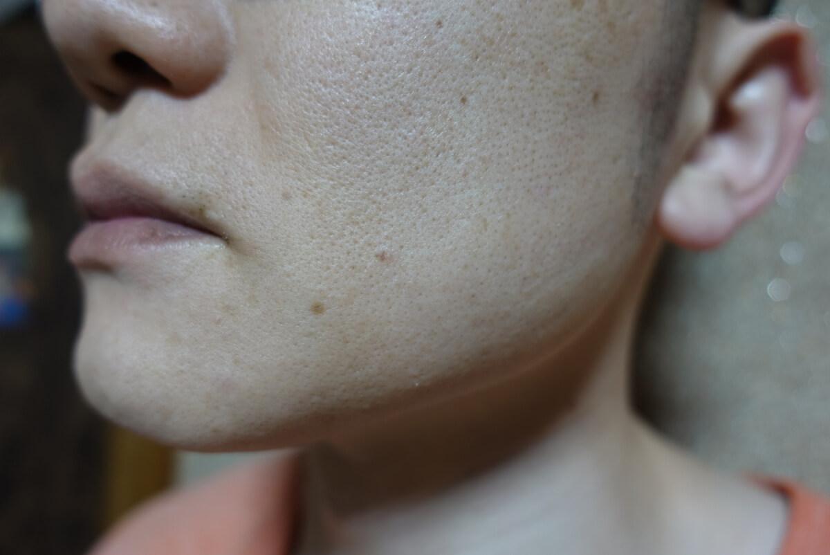 メンズリゼでヒゲ脱毛15回目施術1ヵ月後-側面(左)