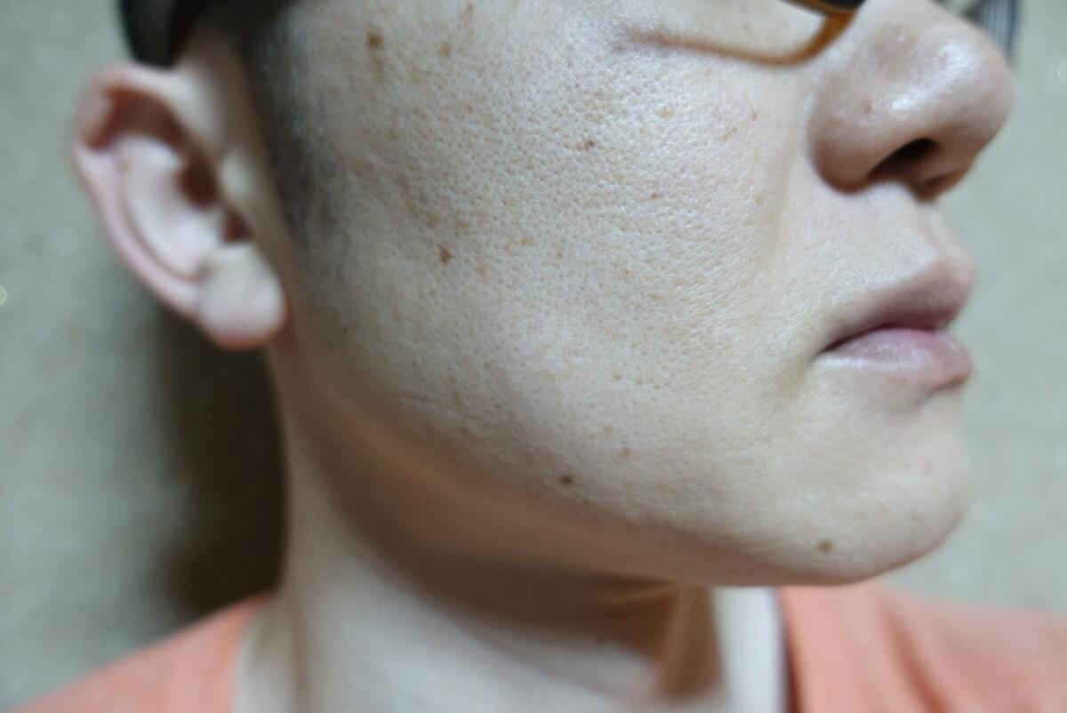 メンズリゼでヒゲ脱毛15回目施術1ヵ月後-側面(右)