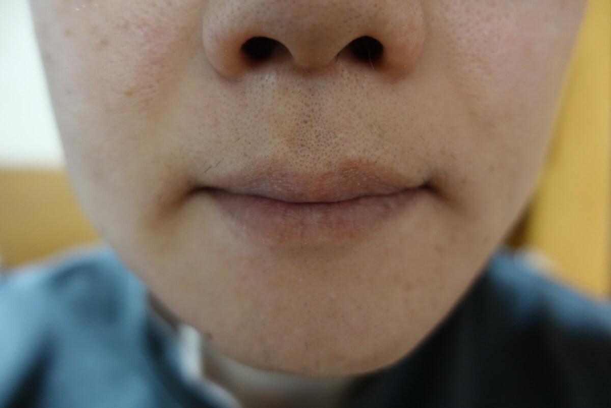 メンズリゼでヒゲ脱毛15回目施術1週間ヒゲを放置-正面