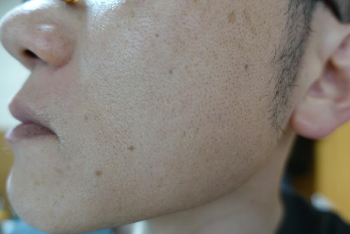メンズリゼでヒゲ脱毛15回目施術1週間ヒゲを放置-側面(左)