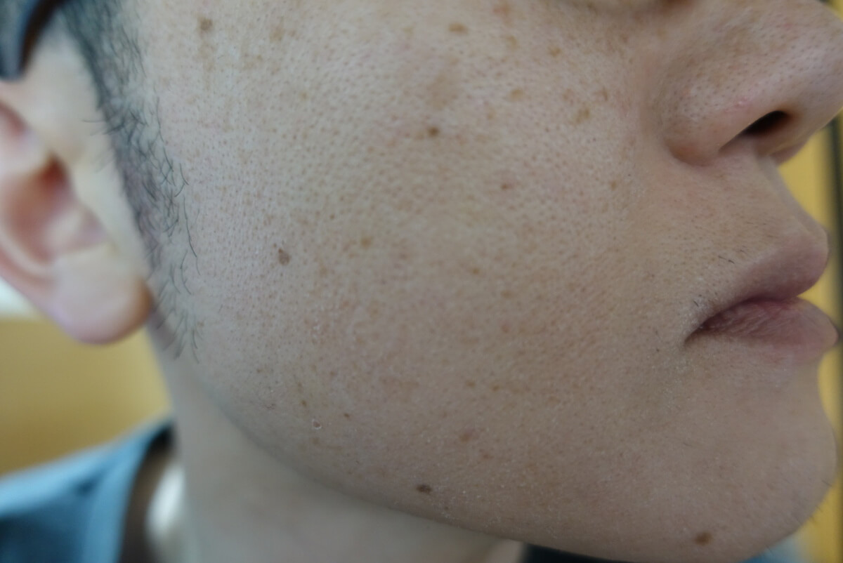 メンズリゼでヒゲ脱毛15回目施術1週間ヒゲを放置-側面(右)