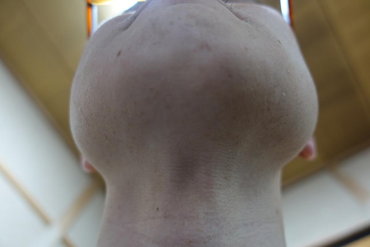 メンズリゼでヒゲ脱毛15回目施術1週間ヒゲを放置-あご下