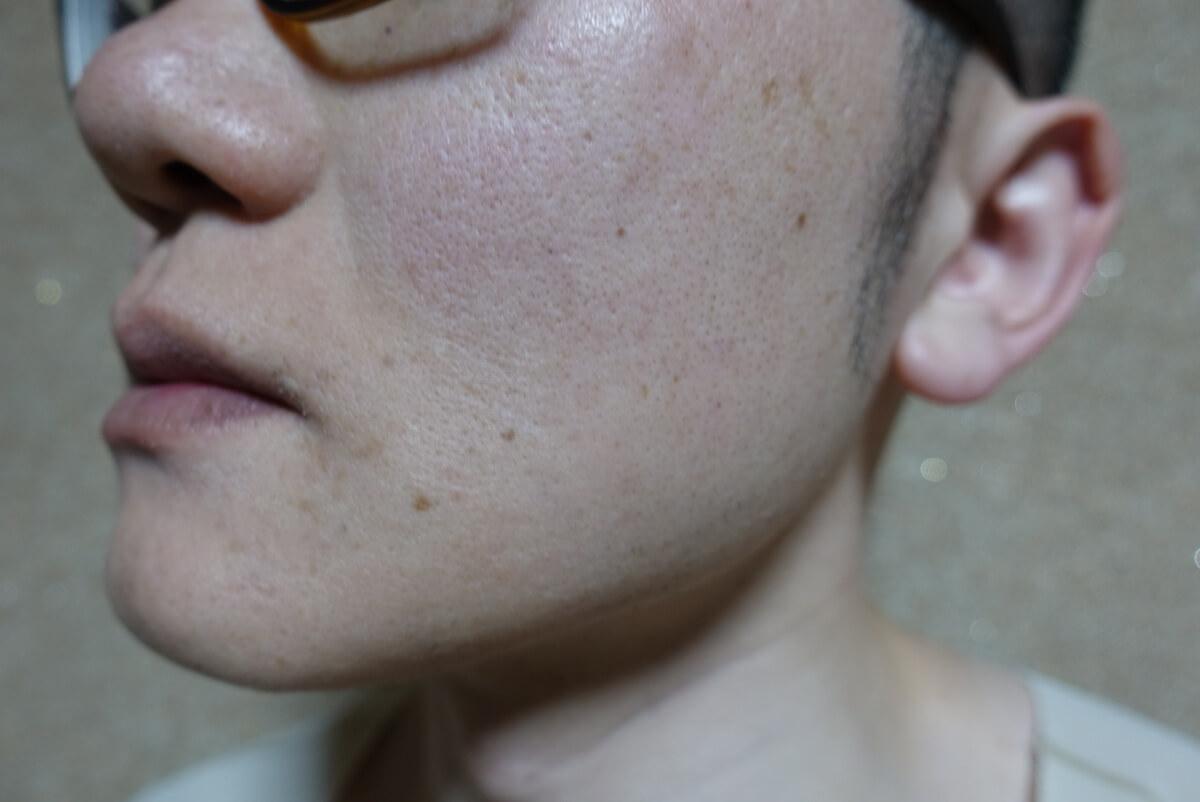 メンズリゼでヒゲ脱毛15回目施術3日後-側面(左)