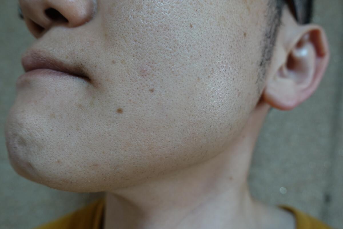 メンズリゼでヒゲ脱毛16回目施術前-側面(左)