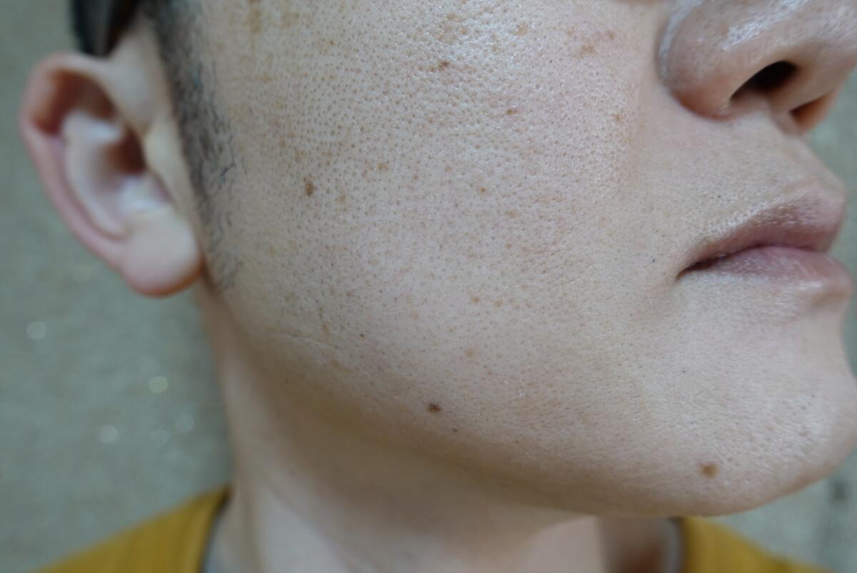 メンズリゼでヒゲ脱毛16回目施術前-側面(右)