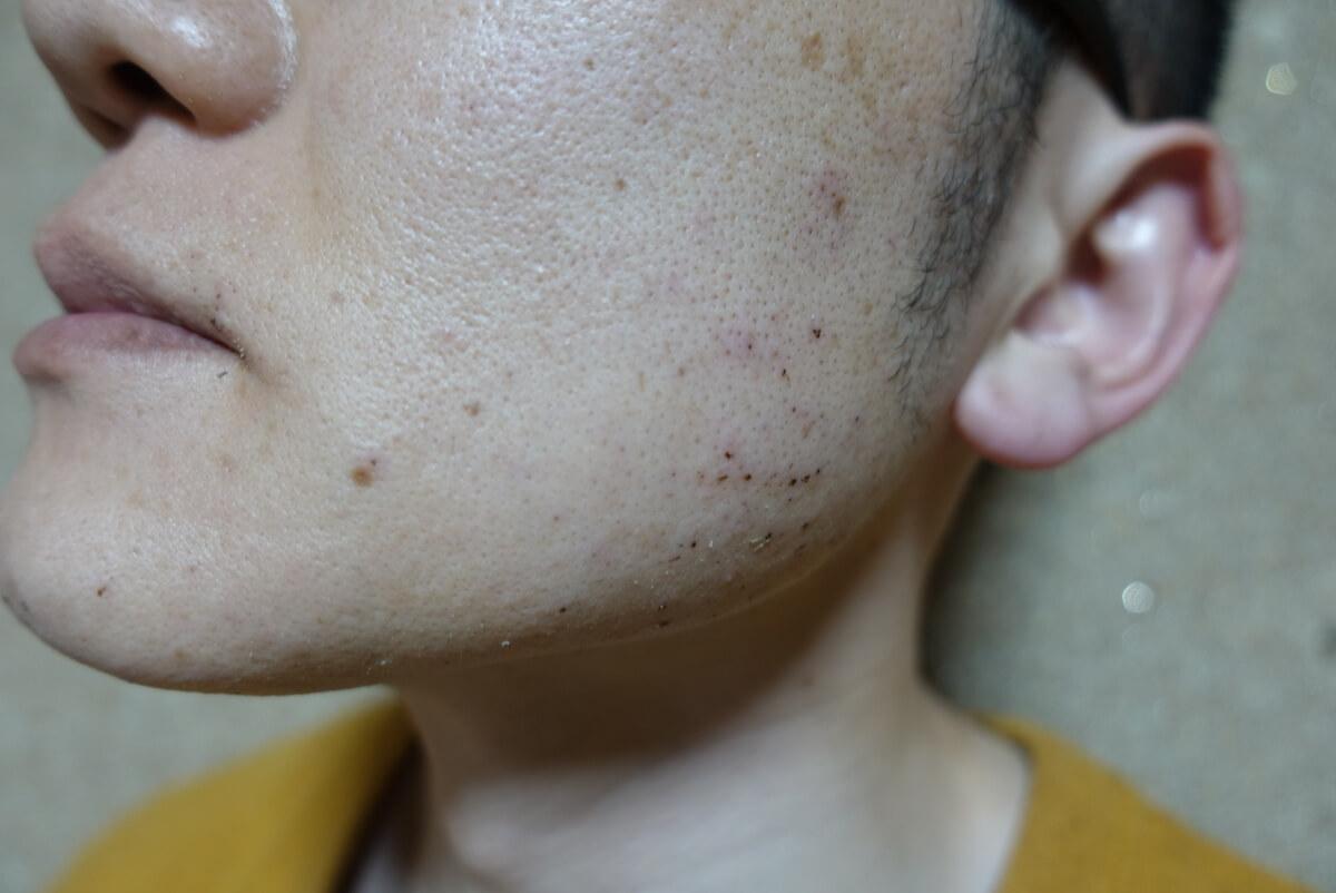 メンズリゼでヒゲ脱毛16回目施術直後-側面(左)