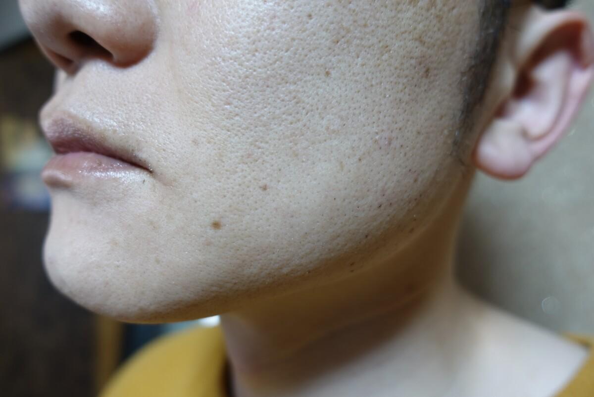 メンズリゼでヒゲ脱毛16回目施術3日後-側面(左)
