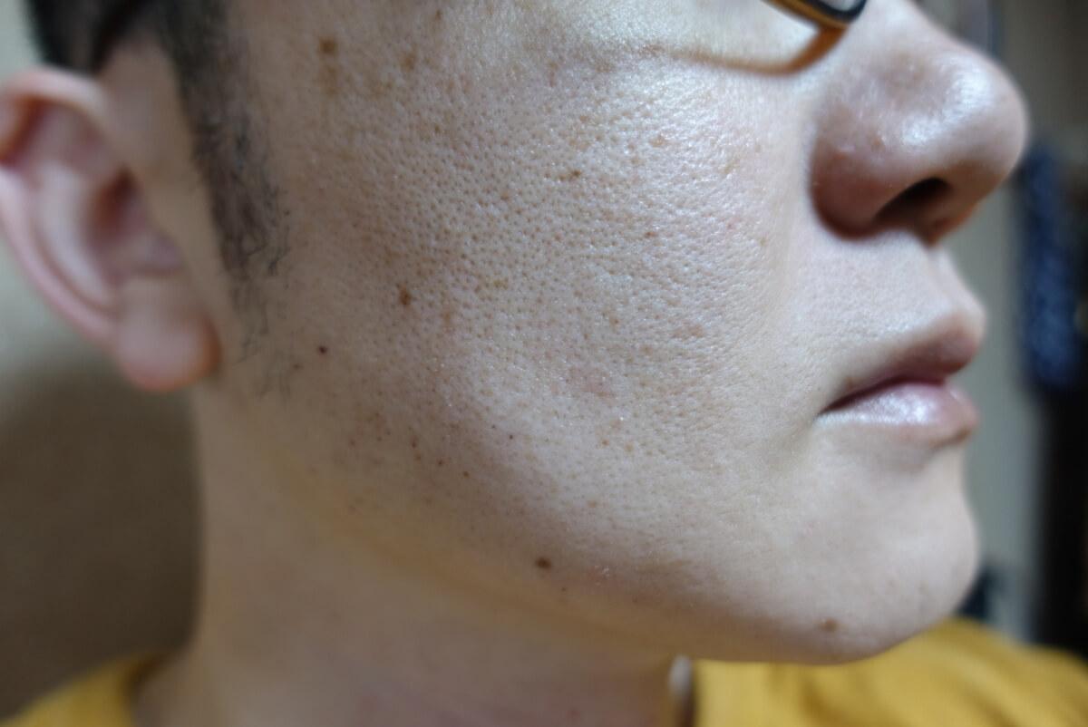 メンズリゼでヒゲ脱毛16回目施術3日後-側面(右)