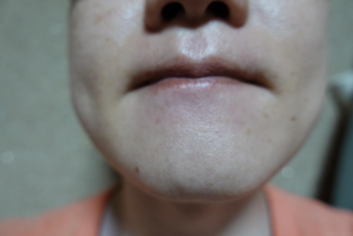 メンズリゼでヒゲ脱毛16回目施術1ヵ月後-正面