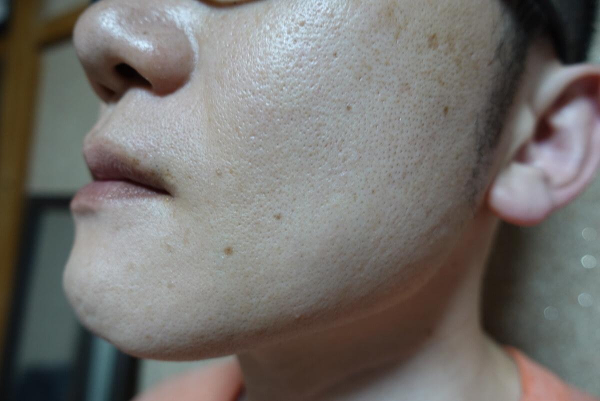 メンズリゼでヒゲ脱毛16回目施術1ヵ月後-側面(左)